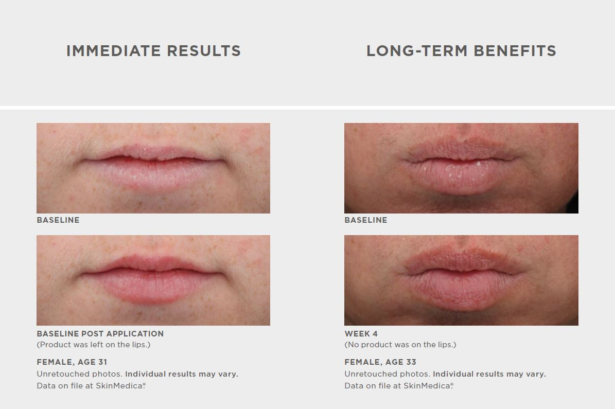 SkinMedica HA5 Smooth & Plump Lip System before and after
