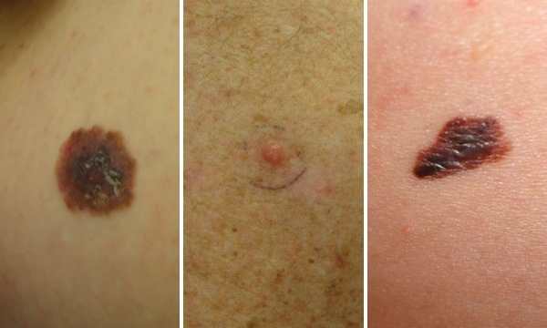 Learn how to spot melanoma with these three examples